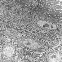 Epidermis. Elektronenmikroskopie: Obere Schicht der lebenden Epidermis, unterhalb des Str. corneu...