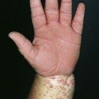 Epidermodysplasia verruciformis. Bei der 34-jährigen Patientin bestehen seit der Kindheit teils e...