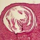 Epidermalzyste.Große mit Horn gefüllte Epidermalzyste mit intakter Epithelauskleidung. Das überl...