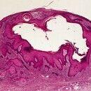 Epidermalzyste, proliferierende. Zystischer epidermaler Tumor. Der optisch leere Hohlraum war urs...
