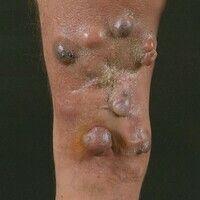 Metastase. Multiple, unterschiedlich große, z.T. rötliche, z.T. dunkel pigmentierte glatte Knoten...