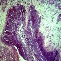 Amöbiasis. Amöbiasis-Feldflaschenulcus. Biopsie aus dem Darm.