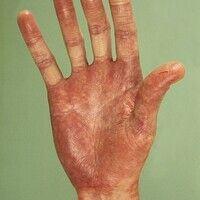 Antikonvulsiva-Hypersensitivitäts-Syndrom. Livides Palmar-Erythem mit Pustelbildung im Bereich de...