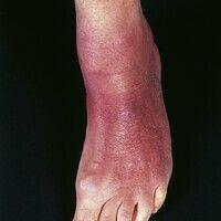 Acrodermatitis chronica atrophicans. Initial flächenhafte, ödematöse, lividrote Plaques. Beginnen...