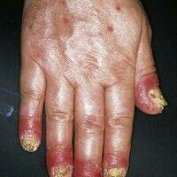 Acrodermatitis continua suppurativa. Chronische, rote, raue Plaques mit rezidivierender Pustelbil...