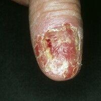 Acrodermatitis continua suppurativa. Rezidivierende, zu Mutilationen neigende, sterile Pustelerkr...