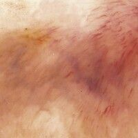 Morbus Addison: Auflichtmikroskopie: Schlierenartige, braune (epidermales Pigment) bis schiefergr...