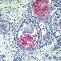 Adnexkarzinom, mikrozystisches. Die Tumorzellverbände bestehen aus mittelgroßen, überwiegend kubo...
