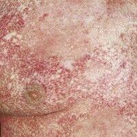 Poikilodermie: chronisches stationäres, seit der frühen Kindheit bestehendes Krankheitsbild. Uni...