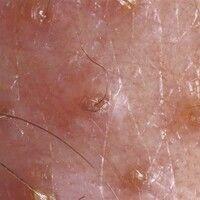 Akne, Öl-Akne. Auflichtmikroskopie: Follikuläre Hyperkeratosen, teilweise mit zentralem Vellushär...