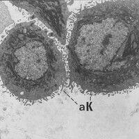 Akantholyse. Elektronenmikroskopie: Einzelne, aus dem Zellverband gelöste, akantholytische Kerati...