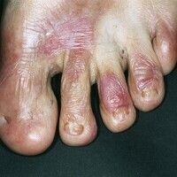Epidermolysis bullosa dystrophica praetibialis. Nagelverfärbungen und Nageldystrophien mit Tüpfel...