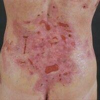 Epidermolysis bullosa dystrophica inversa. Ausgeprägte Blasenbildung bei einer 32-jährigen Patien...