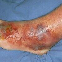 Erysipel. Hämorrhagische Blasenbildung und Erosionen auf scharf begrenztem Erythem im Bereich des...