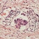 Erysipelas melanomatosum. Melanommetastase in Lymphgefäß.