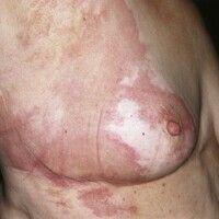 Erysipelas carcinomatosum. Scharf und zackig begrenzte, gerötete, überwärmte, evtl. druckdolente,...