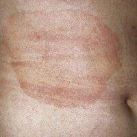 Erythema chronicum migrans. 49 Jahre alte Patientin. Hautveränderungen seit 4-5 Monaten. 22 cm i...