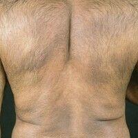 Erythema dyschromicum perstans. 54 Jahre alter Mann. Seit vielen Monaten bestehende, flächenhafte...