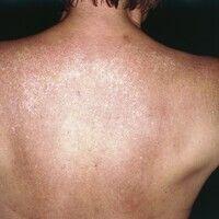 Erythema dyschromicum perstans. Seit Monaten bestehendes Krankheitsbild. Anfangs kleinfleckige, w...