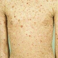 Epidermolysis bullosa junctionalis, non-Herlitz. 12 Jahre alte Patientin mit generalisiertem Kran...