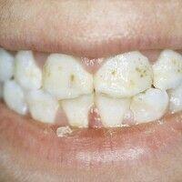 Epidermolysis bullosa junctionalis, non-Herlitz. Punktförmige Zahnschmelzdefekte.