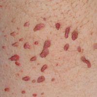 Weiche filiforme Fibroma: Multiple unterschiedlich große, bräunlich rote, weicheHautpolypen mit...