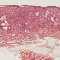 Fibroxanthom, atypisches. Dichtes knotiges Infiltrat das die oberen und mittleren Partien der Der...