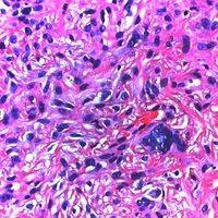 Fibroxanthom, atypisches. Detailvergrößerung: Erhebliche Zell- und Kernpolymorphie, spindelige Ze...