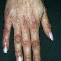 Fingerknöchelpolster, echte. Über Jahre langsam progredient wachsende, braun-rote, schmerzlose, i...
