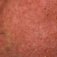 Folliculitis barbae:Massive eitrige (Ostio-)Follikulitis nach Applikation eines Tyrosinkinasehem...