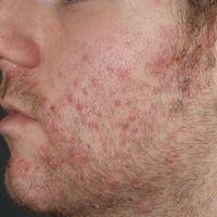 Folliculitis barbae: Chronische therapieresistente, entzündliche follikuläre Papeln und Pusteln i...