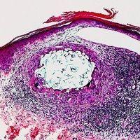 Fremdkörpergranulom; in die Haut eingedrungener Pflanzenstachel mit riesenzelliger Umgebungsentzü...