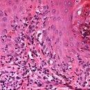 Erythema multiforme (Detailausschnitt): dichtes interstitielles, überwiegend lymphozytäres Infilt...