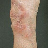 Erythema nodosum. Multiple, stellenweise konfluierte, schmerzhafte indurierte Plaques und Knoten....