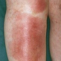 Erythema nodosum. Multiple, unscharf begrenzte, sehr druckschmerzhafte, teigige, leicht erhabene,...