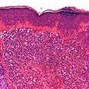 Granuloma eosinophilicum faciei (Granuloma faciale). Dichtes, diffuses Infiltrat in der oberen un...