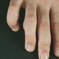 Granuloma anulare subcutaneum. Multiple, chronisch stationäre, feste, symptomlose, subkutan geleg...