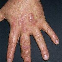 Granuloma anulare subcutaneum. Seit 3 Jahren sich kontinuierlich vermehrende, multiple, meist agg...