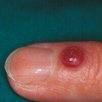 Granuloma pyogenicum (pyogenic granuloma) Seit 14 Tagen bestehender, nach Trauma entstandener, ze...