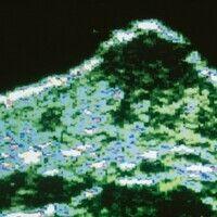 Granuloma pyogenicum (pyogenic granuloma) 20 MHz- Sonographie, zentral echoarme Zone mit einzelne...