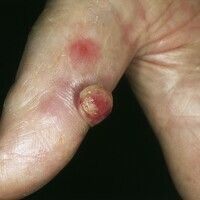 Granuloma pyogenicum (pyogenic granuloma) Nach einem Hammerschlag besteht bei dem 42-jährigen Sch...