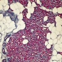 Hämangiom des Säuglings. Lobulärer Gefäßtumor, der das subkutane Fettgewebe infiltiert.