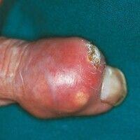 Gichttophi. Fokal perforierender Knoten mit Ablagerungen von Harnsäurekristallen unter der Haut i...