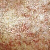 Graft-versus-Host-Disease, chronische. Detailaufnahme: Poikilodermatisches Bild mit flächigen wei...