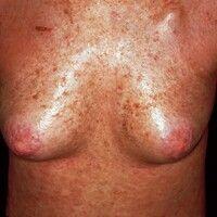 Graft-versus-Host-Disease, chronische. 2 Jahre nach Stammzelltransplantation eintretende, großflä...