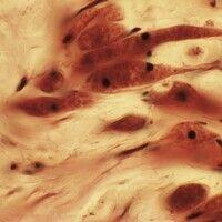 Granularzelltumor. Vergrößerung: Granuläres Zytoplasma in den spindeligen Zellen.