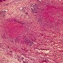 Granuloma anulare. 2 deutlich abgesetzte eosinophile Zonen mit nekrobiotischem Kollagen sowie uml...