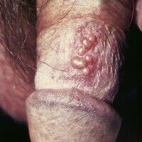 Herpes-simplex-Virus-Infektion. Bei einem 30-jährigen Patienten bestehen gruppierte, juckende, le...