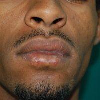 Herpes-simplex-Virus-Infektion: ausgedehnte Herpes-simplex-Infektion der Unterlippe mit ausgepräg...