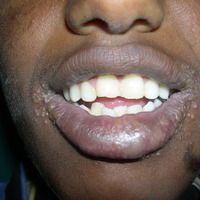 Herpes-simplex-Virus-Infektion: schwere und ausgedehnte, multifokaleHerpes-simplex-Infektion der...
